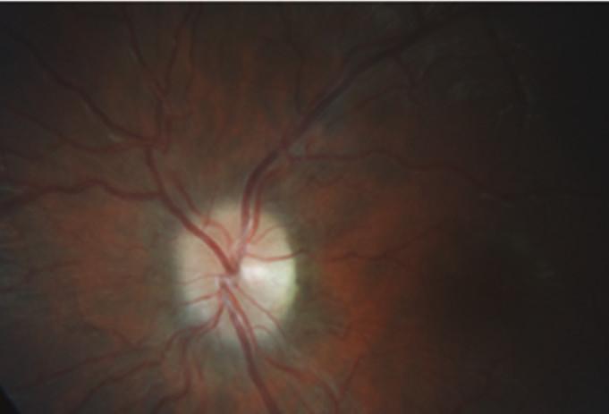 Po čtyřech měsících léčby došlo k dalšímu ústupu edému terče zrakového nervu vlevo