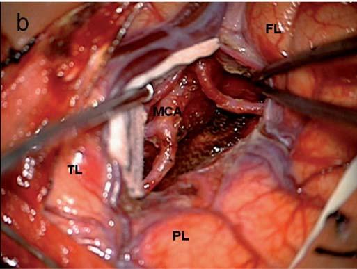 Obr. 5b) Ozřejmení větvení ACM, patrná je větší adhezivita nádoru k cévám než u nádorů s nižším stupněm malignity.