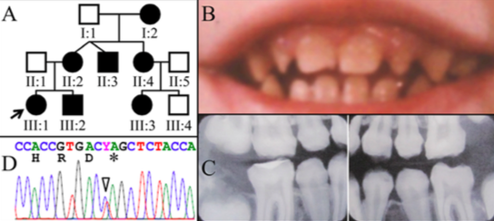 Figure 3.  Family 3. A: Pedigree of Family 3 Proband (III:1). B: Oral photograph showing dental enamel malformations in primary dentition. C: Bitewing radiographs showing hypocalcified enamel of permanent teeth at age 12 that have already undergone extensive attrition. D: Chromatogram showing that the proband was heterozygous for FAM83H mutation (g.10638C>T and c.1354C>T) that converted a glutamine codon (CAG) at codon 452 into a premature termination codon (TAG). Y  =  C or T.