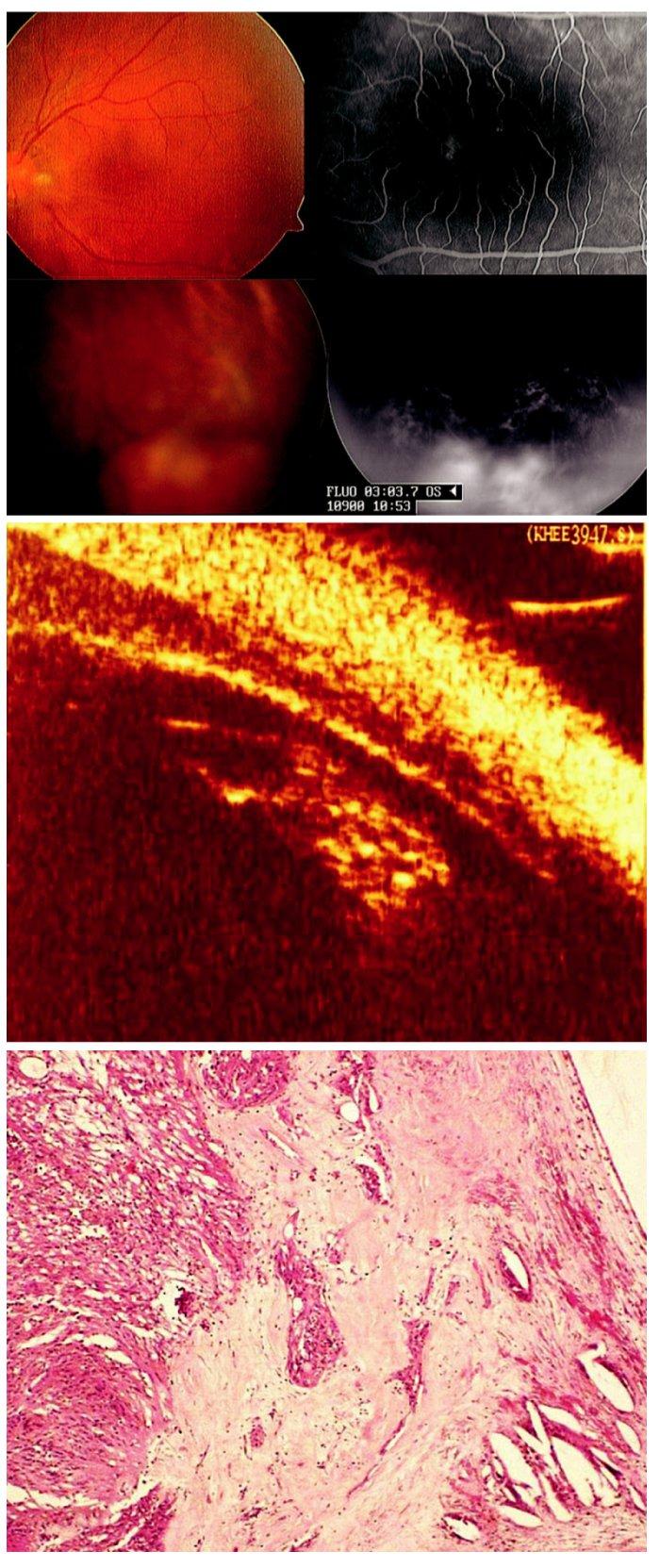 Coatsova nemoc manifestující se jako infekční chorioretinitida (toxokara, toxoplazma) u 37leté ženy. A) Cystoidní makulární edém a elevovaný žlutočervený útvar v periferii sítnice levého oka. Při fluorescenční angiografii patrné prosakování fluoresceinu v makule i elevovaném útvaru v periferii sítnice. B) Biomikroskopický ultrazvuk nepotvrdil zánětlivé změny. C) Histopatologické vyšetření enukleovaného pravého bulbu prokázalo exsudativní amoci, přítomnost cholesterolu a teleangiektatických cév s minimální zánětlivou reakcí