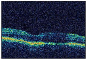 OCT sken pravej makuly dva mesiace po vysadení Citalopramu – úplné vymiznutie edému