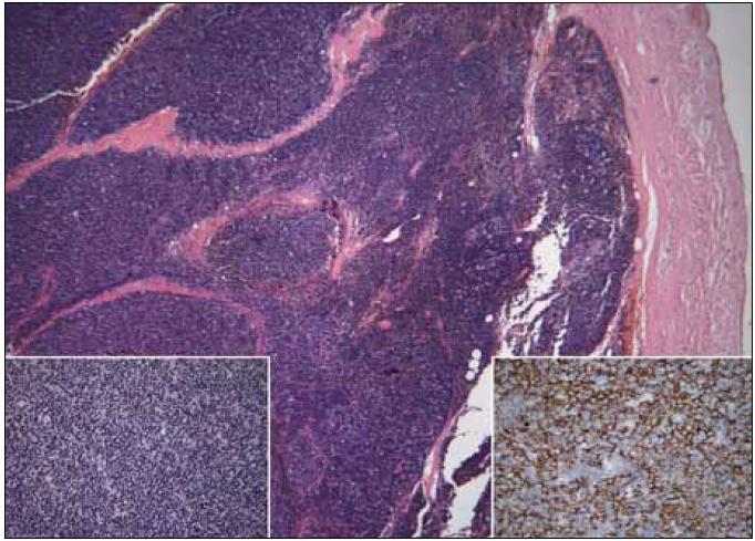 Thymom B1, vlevo dole detail struktury, vpravo dole imunohistochemický průkaz cytokeratinů směsi ukazující epiteliální nádorovou složku (kazuistika 2).