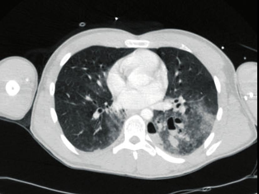Axial CT