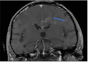 Peroperační MR kontrola, T1 vážení s kontrastem. Šipkou označen bioptický kanál končící v ložisku. Bez krvácivé komplikace.