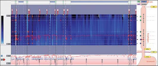 Normální pH-metrie s impedancí (Dr. Štrosová, Remedis).