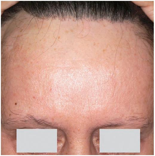 Frontální jizvící alopecie