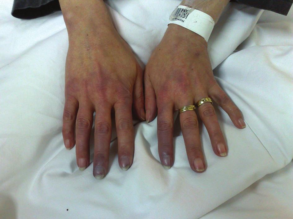 Pacientka se systémovou sklerodermií léčená prostanoidy za hospitalizace pro těžké ataky RF a počínající ulcerace (stav po záchvatu RF s trvající cyanózou zejména 2. prstu levé a 2. a 3. prstu pravé ruky).