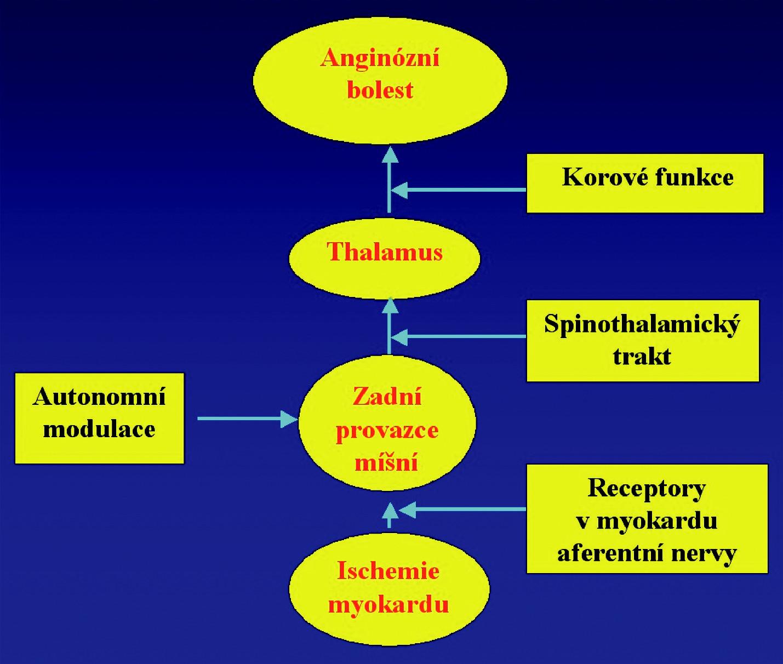 Schéma působení neurostimulátoru