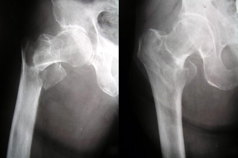 Obr. 1a: Pertrochanterická zlomenina