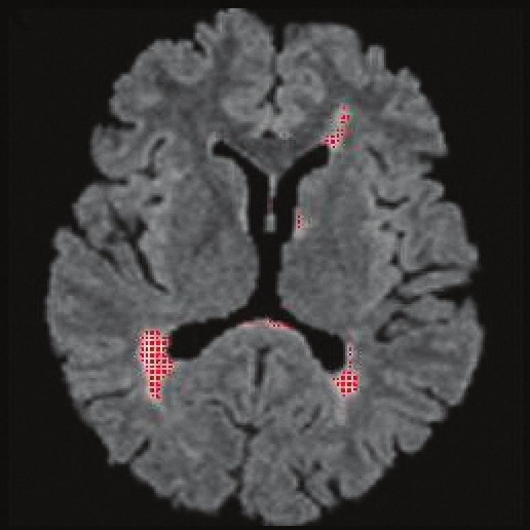 FLAIR, transverzální řez, technika volumometrie patologických ložisek (plak). Vyšrafovány červeně jsou oblasti, které dosahují určité prahové hodnoty signálové intenzity (po aplikaci filtrů a morfologických operací), z nich je spočítán objem. Zde byl objem 11,3 cm<sup>3</sup>.