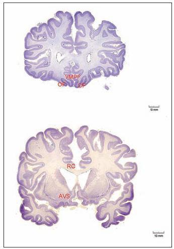 Přibližná poloha uzlů sítě centrální odměny aktivované v průběhu kooperace. Legenda: OF – orbitofrontální kůra, VMPF – ventromediální prefrontální kůra AVS – anteroventrální striatum (nc. accumbens a část nc. caudatus) RO – rostrální cingulární kůra (Rilling 2002)