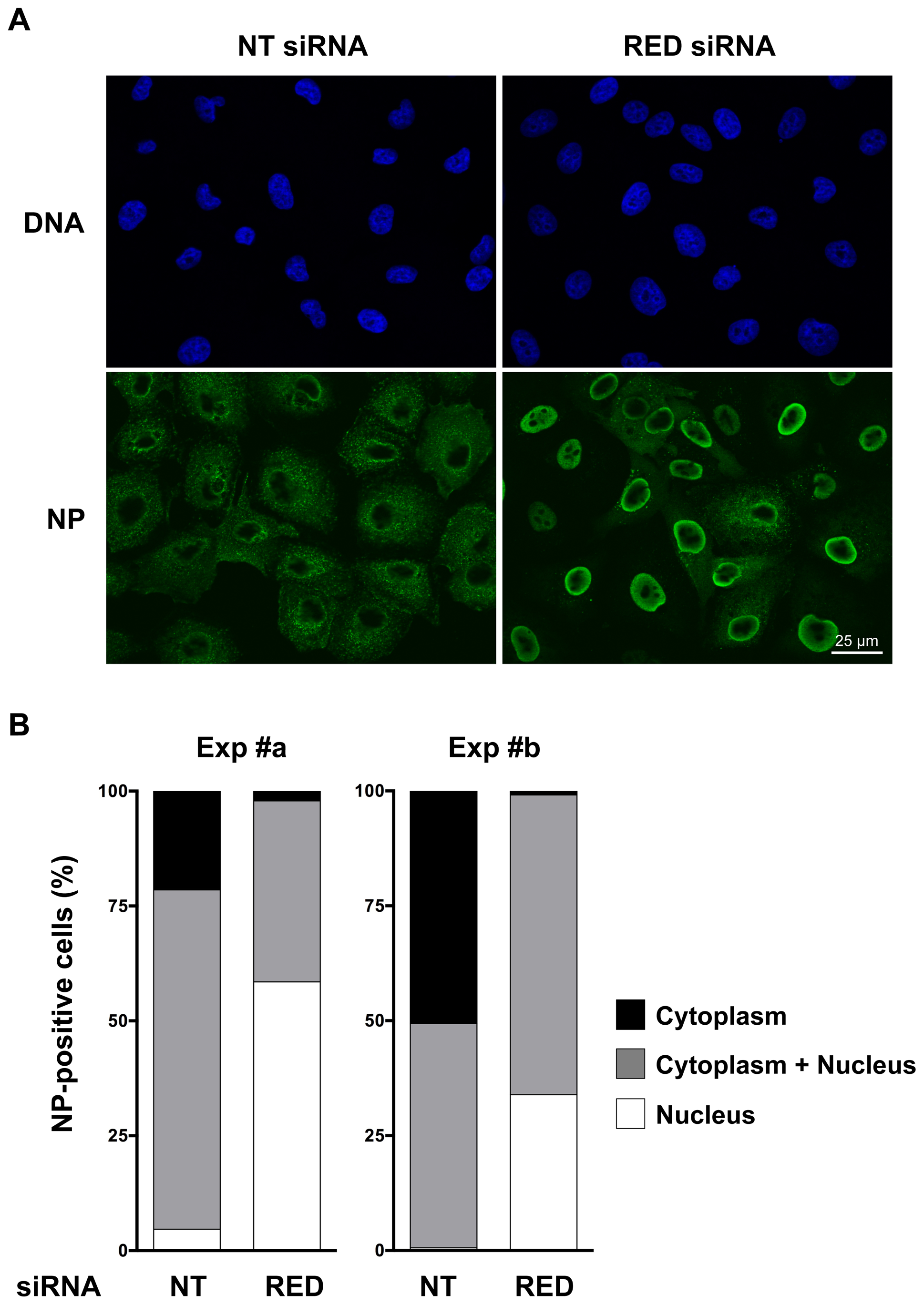 Effect of RED knock-down on the subcellular localization of NP in influenza virus infected cells.