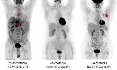 Přehled sumovaných obrazů (MIP) rozložení radiofarmaka fluorodeoxyglukózy v trupu u případů 5, 9 a 10 (zleva doprava). U pacienta s multicentrickou CD se hodnoty SUV<sub>max</sub> pohybovaly mezi 2,52 a 5,47. U pacientů s unicentrickou CD jsme se setkali jak s případy nižššího SUV<sub>max</sub> (případ 9, SUV<sub>max</sub> = 2,20), tak s případy vyššího SUV<sub>max</sub> (případ 10, SUV<sub>max</sub>= 4,91). Aktivitu v zachycené mozkové kůře, slinných žlázách, myokardu, žaludku, varlatech, ledvinách a močovém měchýři považujeme za fyziologickou.