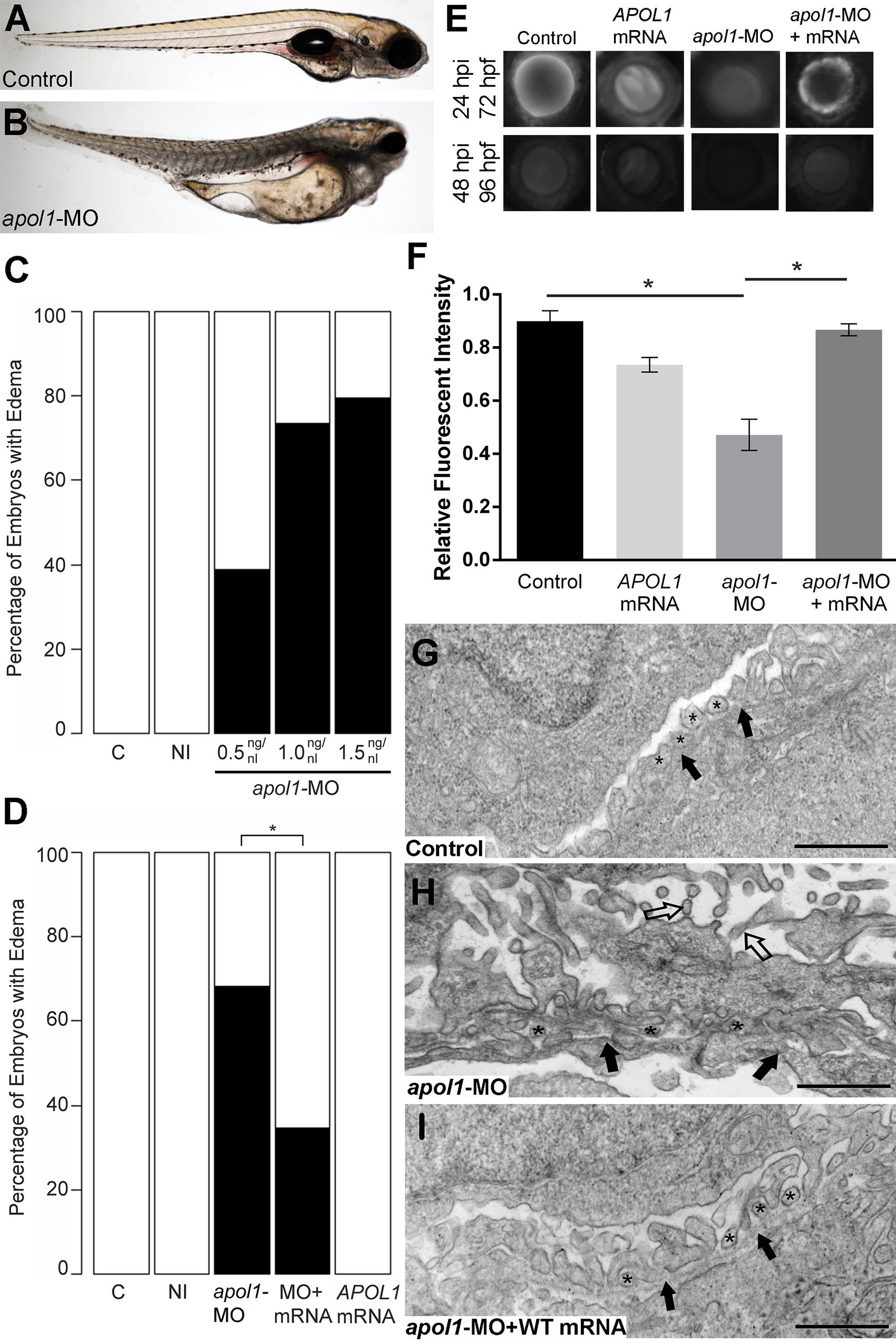 <i>apol1</i> morphant zebrafish embryos display generalized edema and glomerular filtration defects indicative of nephropathy.