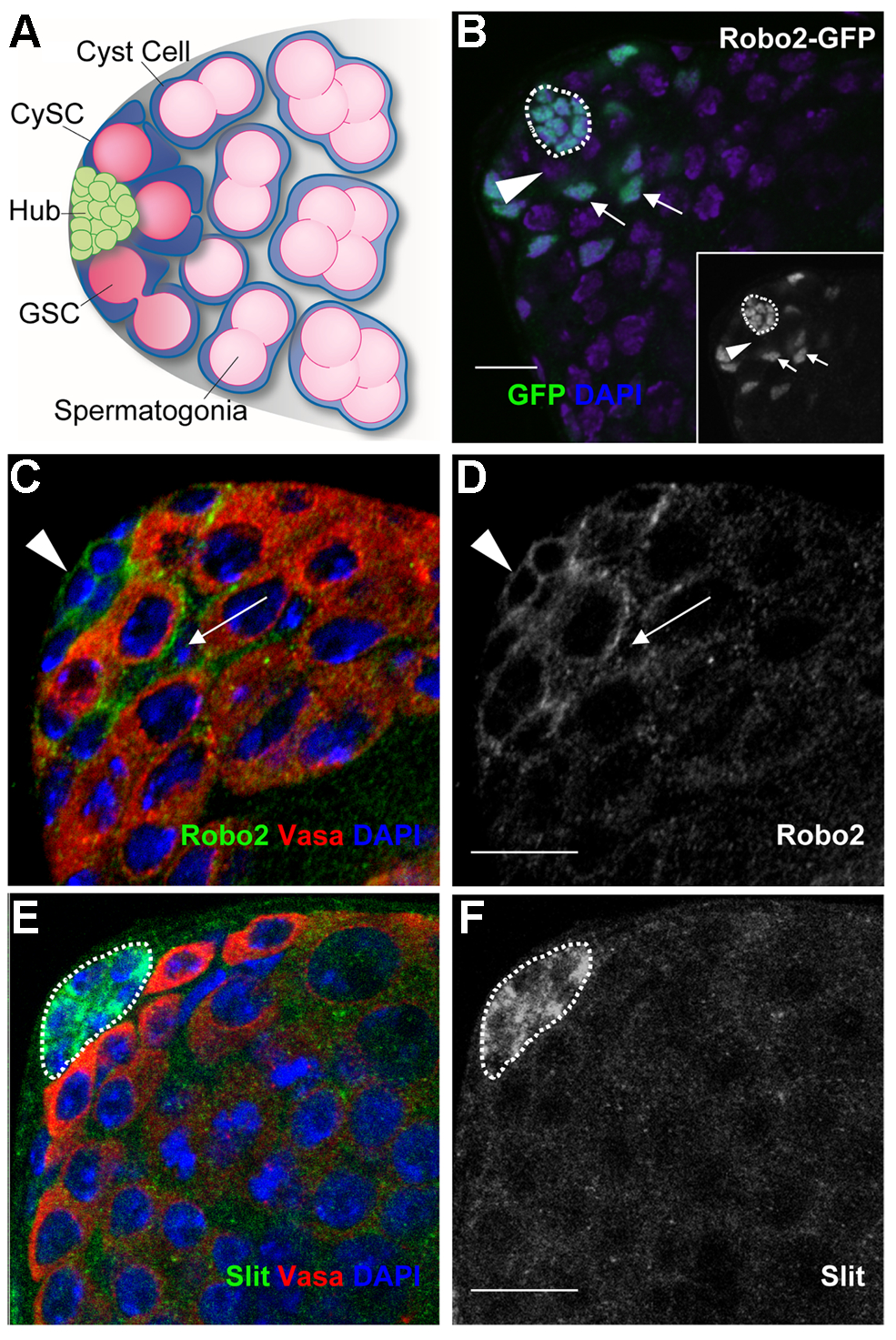 Components of the Slit-Robo pathway are expressed in the <i>Drosophila</i> testis stem cell niche.