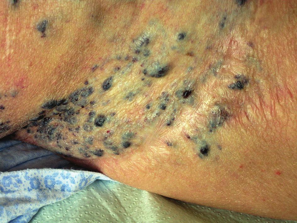 Kožní projev hemangiomu v oblasti pravého boku