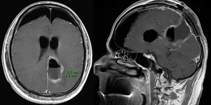 Časná pooperační MR (1. pooperační den) ukazující postresekční dutinu a reziduální tumor o velikosti 0,5 × 1,2 cm na axiálním (A) a sagitálním (B) skenu naléhající na pyramidovou dráhu. Fig. 3. Early postoperative MR scan (1st day) showing postresection cavity and residual tumour 0,5 × 1,2 cm on axial (A) and sagittal (B) plane, tight on pyramidal tract.