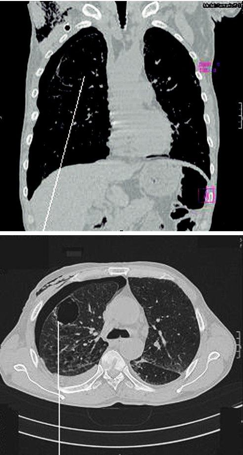 CT izolované plicní buly a parciální PNO Fig. 1. A CT scan of an isolated pulmonary bule and partial pneumothorax