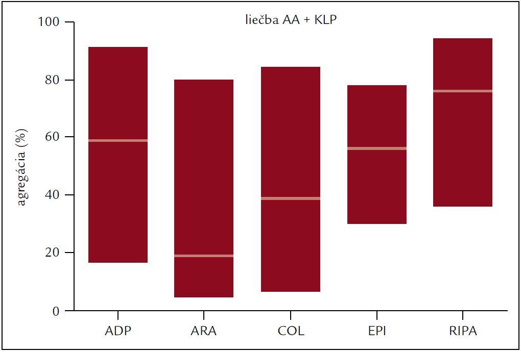 Agregácia krvných doštičiek po rôznych induktoroch u pacientov liečených kyselinou acetylsalicylovou a klopidogrelom.