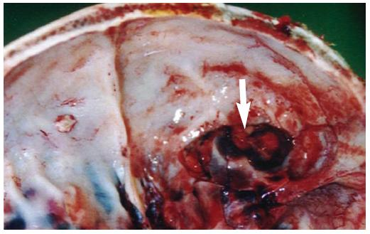Při pitvě zjištěna zlomenina pravé přední jámy lební