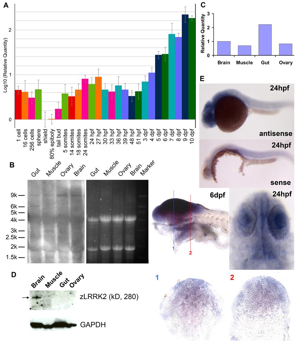 Expression profiling of <i>lrrk2</i> in zebrafish.