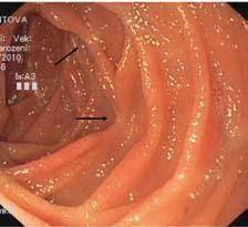 Pozánětlivé změny a deformity řas (šipky). Fig. 2. Post-inflammatory changes and deformations of intestinal folds (arrows).