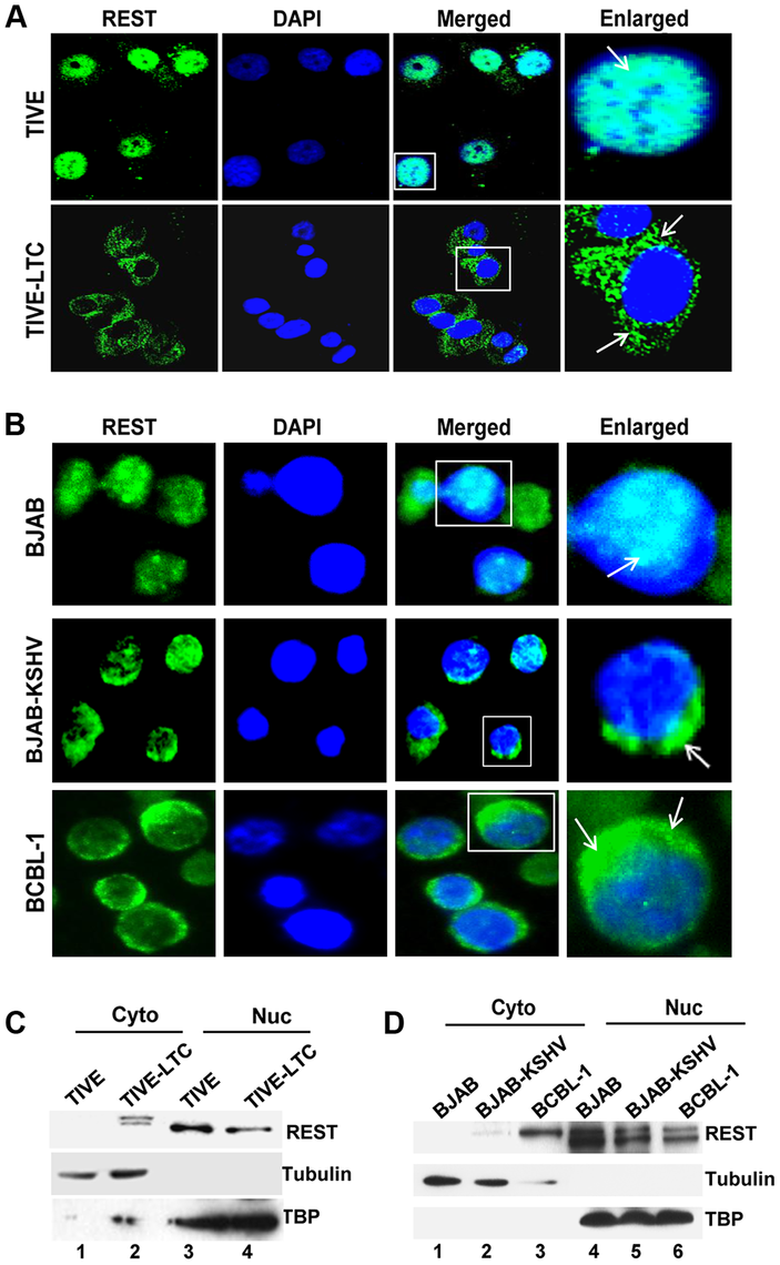 Cytoplasmic localization of REST in KSHV infected cells.
