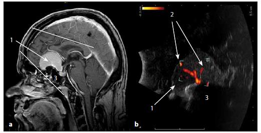 Sonografické duplexní zobrazení cévního zásobení meningeomu čichové rýhy. Fig. 13. The ultrasound duplex image of arterial supply of olfactory meningioma.
