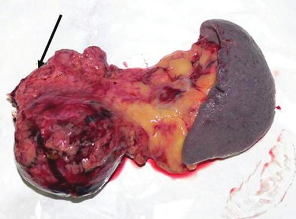 Resekovaný distálny pankreas so slezinou, resekčná línia označená šípkou Fig. 8. The resected distal pancreas and spleen, the resection line marked with an arrow