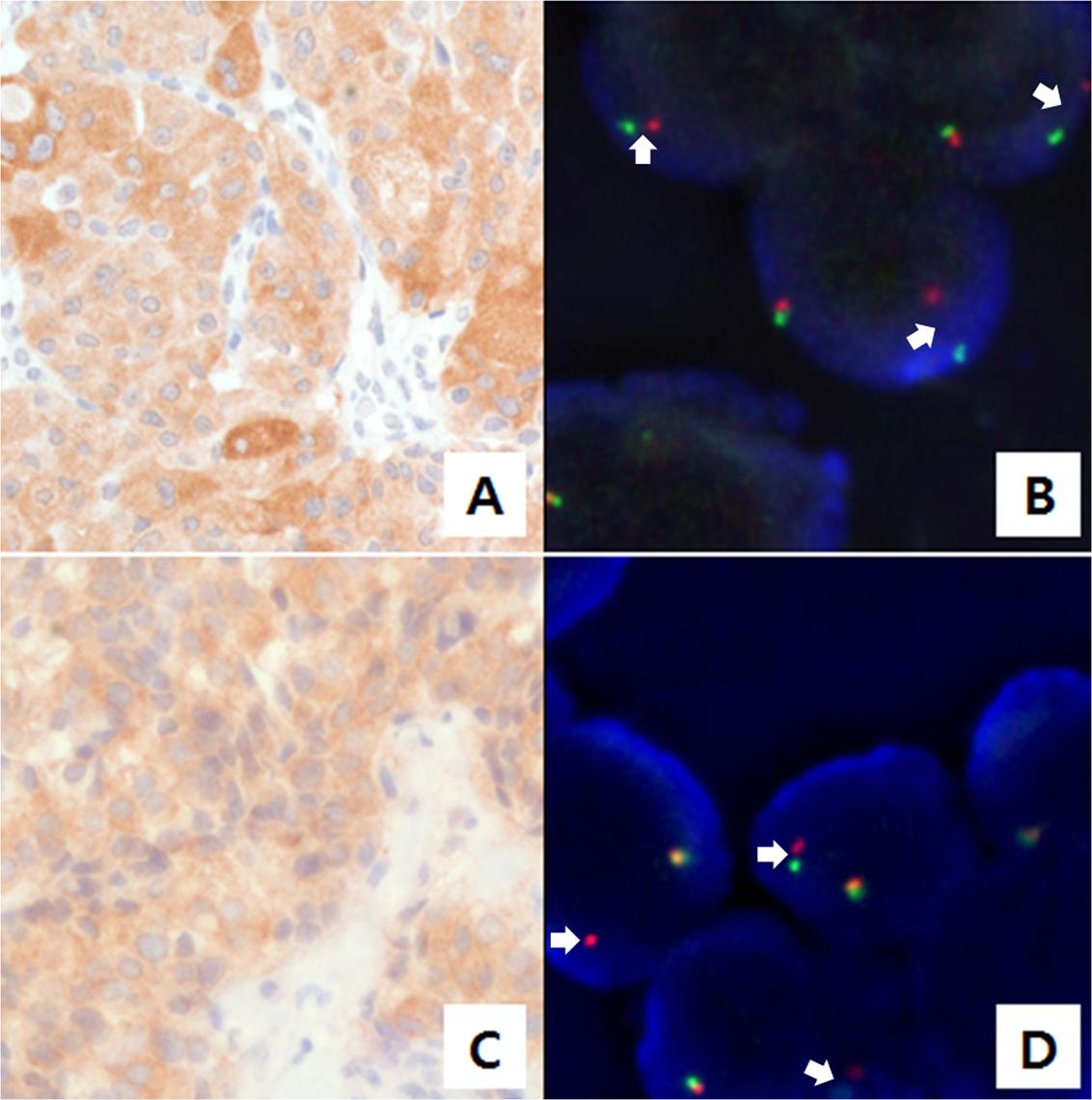 Anaplastic lymphoma kinase (ALK) staining using immunohistochemistry (IHC) and fluorescence <i>in situ</i> hybridization (FISH).