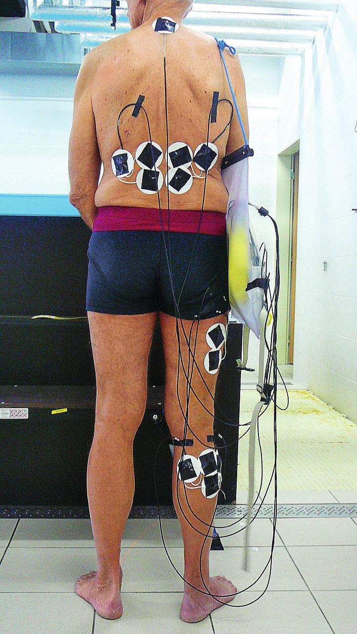 Aplikace elektrod – pohled zezadu.
