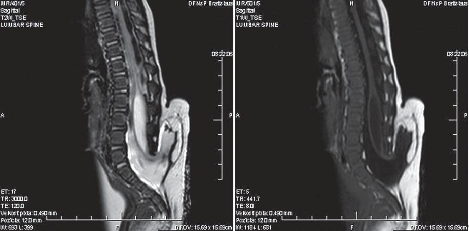 Obr. 5, 6. Zobrazenie spinálneho lipómu na MR v T1 a T2 vážení. Fig. 5, 6. Spinal lipomas on a T1 and T2-weighted MRI.