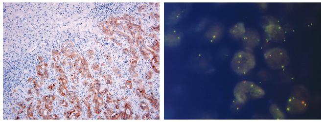 Metastáza plicního adenokarcinomu v jaterním parenchymu s přestavbou ALK pozitivní v imunohistochemickém průkazu pomocí protilátky klonu 5A4 (A) a metodou FISH (B)