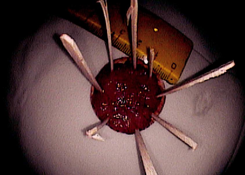 Resekát fixovaný na korkové podložce (histologicky HGD adenom) Pic. 8. Resected specimen fixed on a corc board (HGD adenoma)