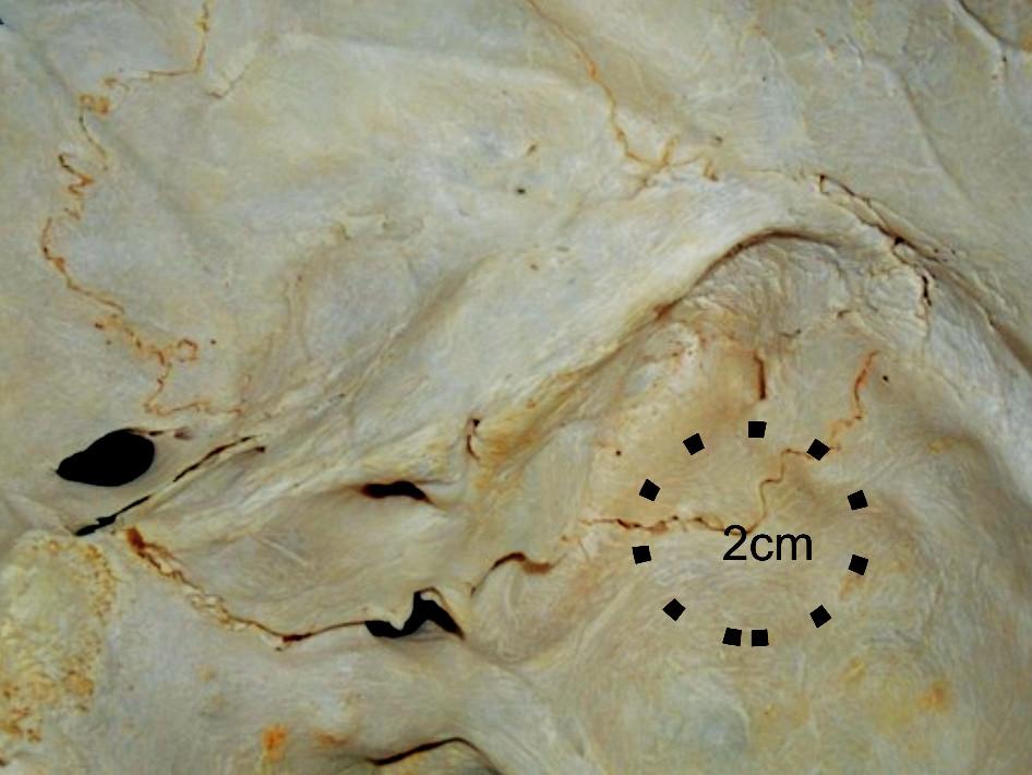 Pohľad do vnútra na sulcus sinus sigmoidei, pyramídu. Vyznačená je oblasť pre minimálnu retrosigmoidnú transemisárnu kraniotomiu.
