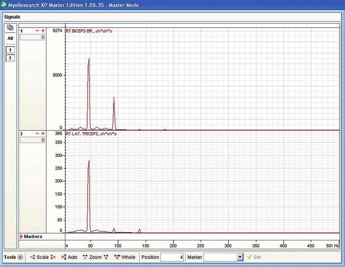Rychlá Fourierova transformace u probanda č. 1 při izometrické kontrakci při zapnutém vibračním modu čínky.