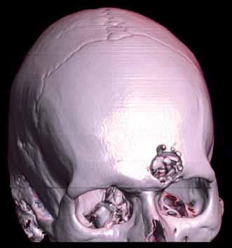 Otevřené penetrující poranění hlavy (3D).
