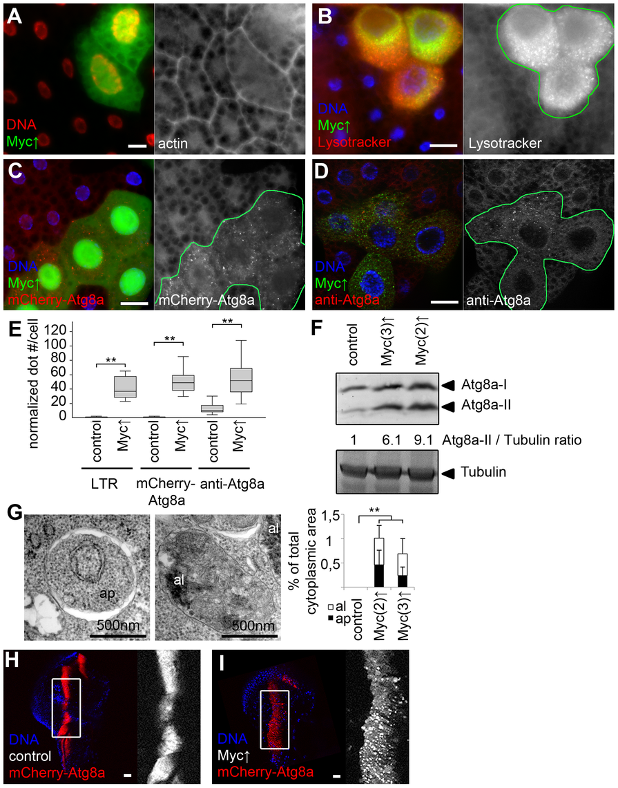 Myc overexpression induces autophagy in Drosophila.