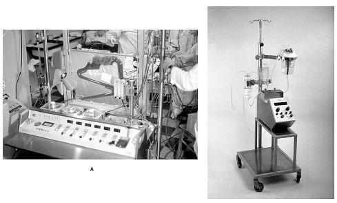 A – moderní přístroj pro mimotělní oběh Sarns 5000, B – miniaturní přístroj pro mimotělní oběh pro novorozence a kojence vlastní konstrukce