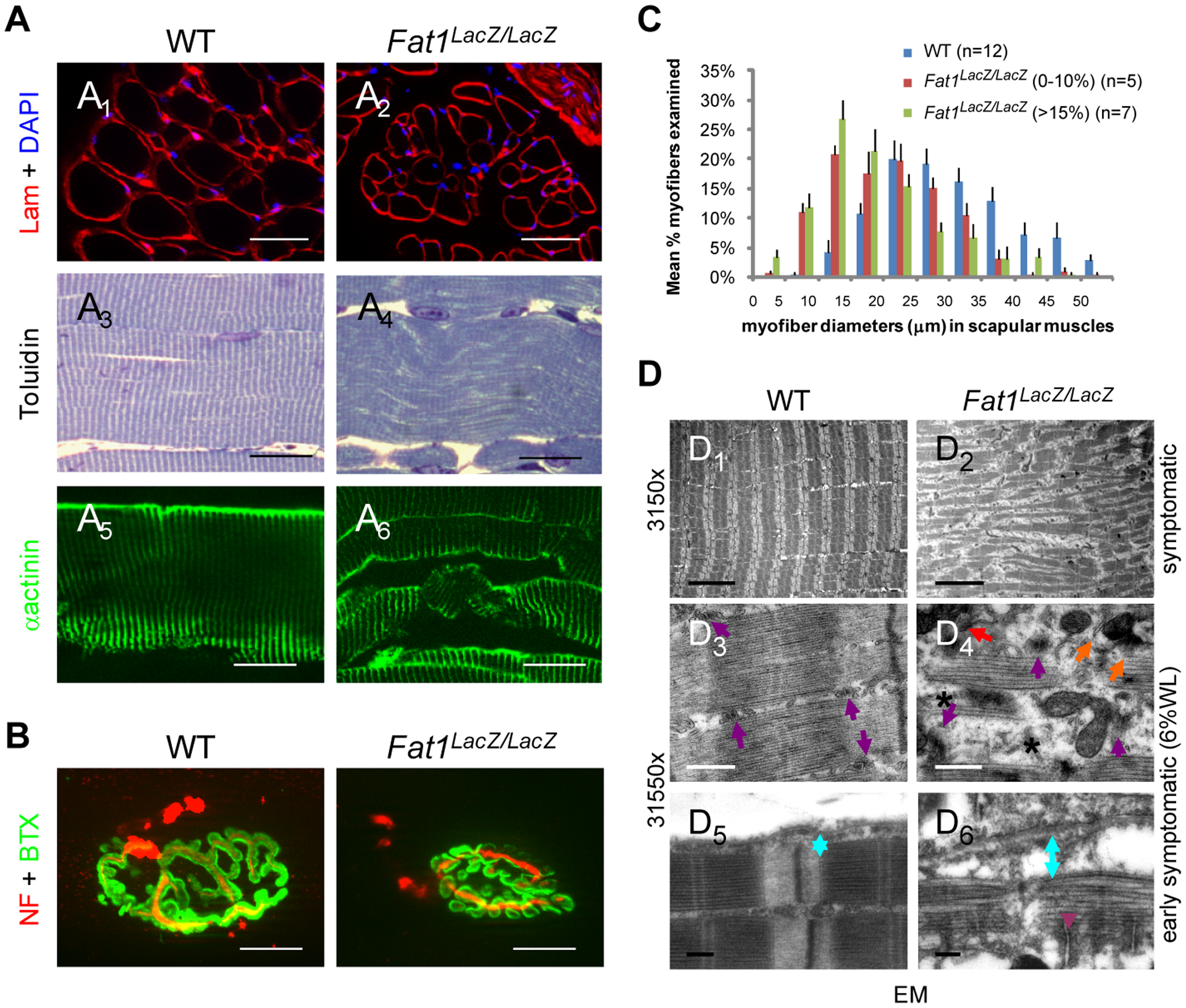 Abnormally shaped shoulder muscles of <i>Fat1</i>-deficient mice develop phenotypes involving reduced muscle fibres diameter and structural abnormalities.