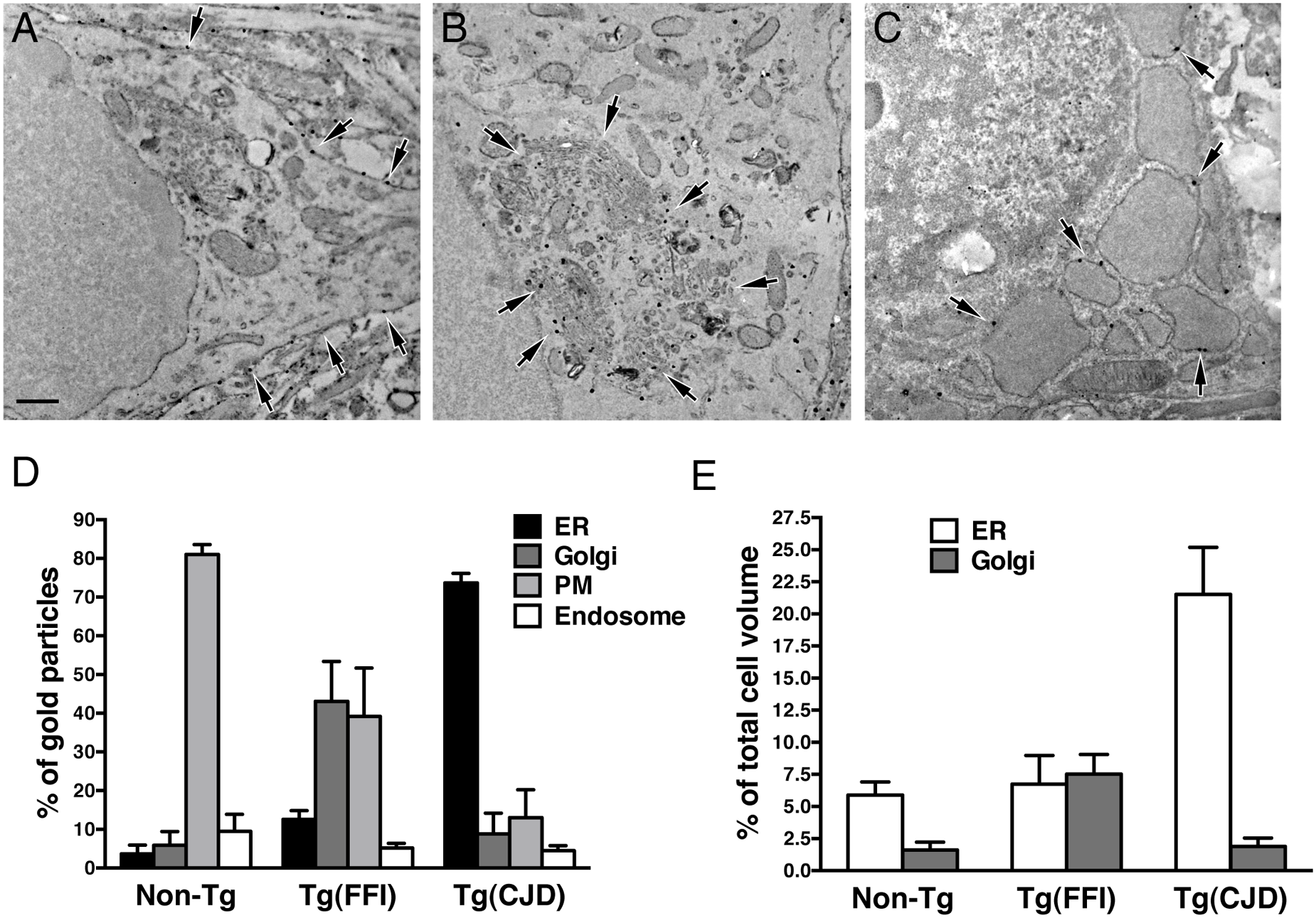 Tg(FFI) and Tg(CJD) neurons show different intracellular PrP accumulations and morphological abnormalities of transport organelles.