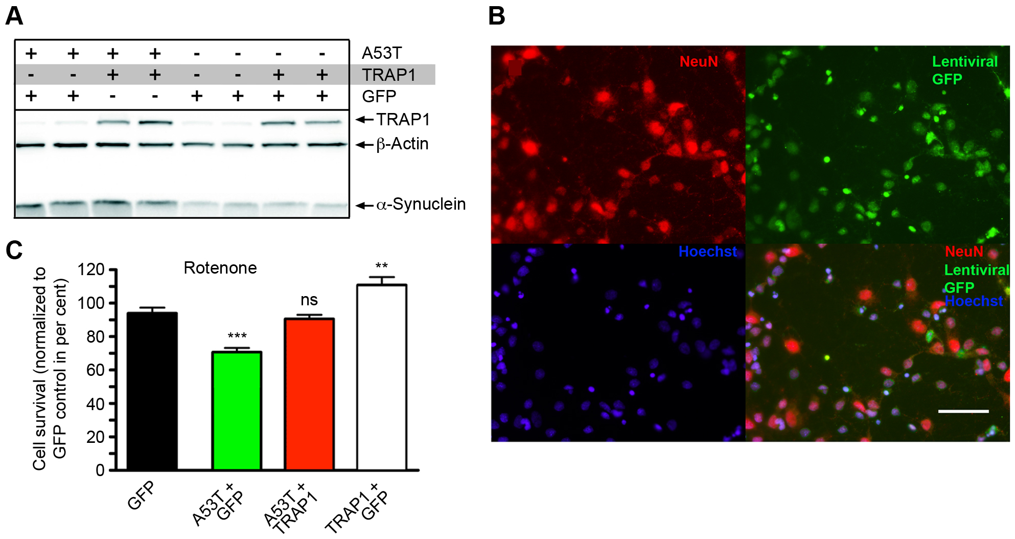 TRAP1 overexpression protects rat cortical neurons from [A53T]α-Synuclein-induced sensitivity to rotenone.