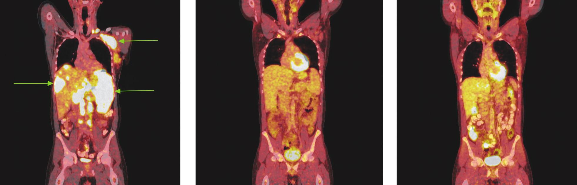 Série PET/CT snímků u nemocného s difuzním B-velkobuněčným lymfomem před léčbou, po 2 cyklech léčby a po ukončení léčby. Na prvním snímku nalezeny pakety lymfatických uzlin v levém nadklíčku a v levé axile vykazující výrazný hypermetabolismus glukózy. Další mnohočetná ložiska hypermetabolismu glukózy byla lokalizována ve skeletu páteře, žeber, ve zvětšené slezině a v játrech. Na druhém snímku po 2 cyklech léčby přetrvávají zvětšené lymfatické uzliny v nadklíčku v axile vlevo, ve srovnání s předchozím vyšetřením však na PET snímcích nevykazují hypermetabolismus glukózy a na CT je patrné, že došlo k jejich zmenšení. Na posledním snímku po dokončení léčby nalezeny pouze zvětšené lymfatické uzliny v levé axile, v ostatních lokalizacích bez patologicky změněných lymfatických uzlin. Hypermetabolismus glukózy svědčící pro viabilní nádorovou tkáň neprokázán.