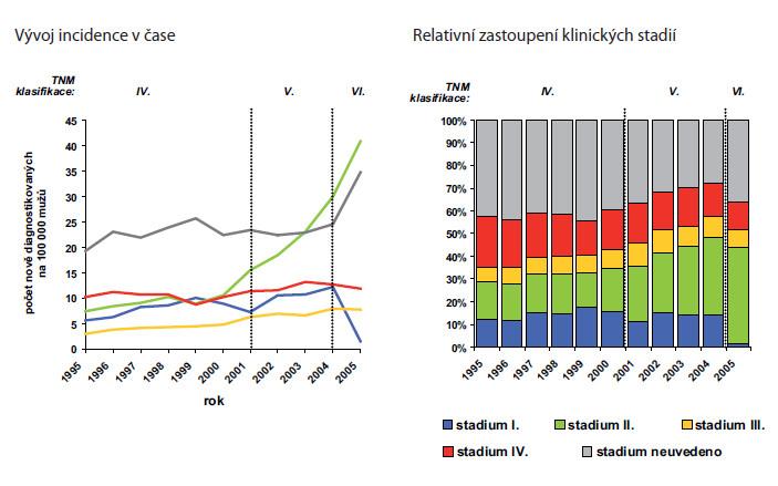 Zastoupení klinických stadií u karcinomu prostaty v české populaci Fig. 2. Prostate cancer stage distribution in Czech Republic Delení zhoubného novotvaru prostaty do klinických stadií bylo zavedeno až ve IV. vydání TNM klasifikace zhoubných novotvaru, podle kterého jsou údaje v NOR CR zaznamenávány od roku 1995.