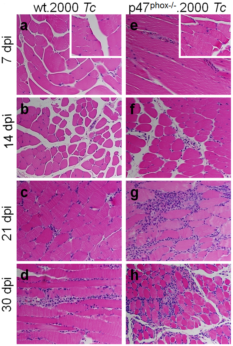 Histological analysis of inflammatory infiltrate in <i>T. cruzi</i>-infected p47<sup>phox−/−</sup> mice.
