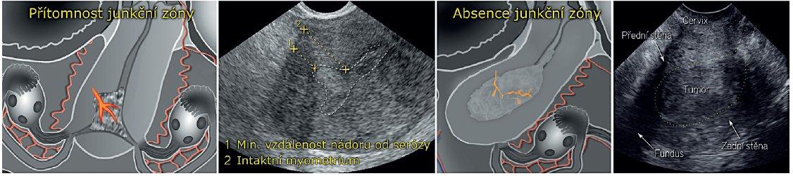 Ultrazvukové hodnocení hloubky myometriální invaze endometriálního karcinomu