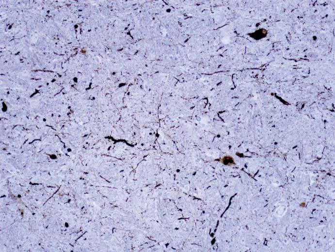 Dystrofické Lewyho neurity v oblongate vizualizované imunohistochemicky farbením alfa-synukleinom. Ojedinele sú patrnné i neuróny s cytoplazmatickými depozitami, tie majú v jednom mieste i charakter Lewyho teliesok. Fig. 3. Dystrophic Lewy neurites in oblongata visualized by immunohistochemical staining for alpha-synuclein. Neurons with cytoplasmic deposits are rarely seen, these have a character of Lewy bodies in one location.