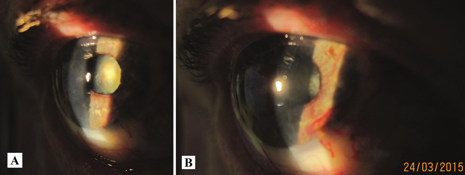 Makrofoto predného segmentu oka toho istého pacienta v r. 2015 – progresia katarakty (A), zvýraznenie neovaskularizácie dúhovky (B)