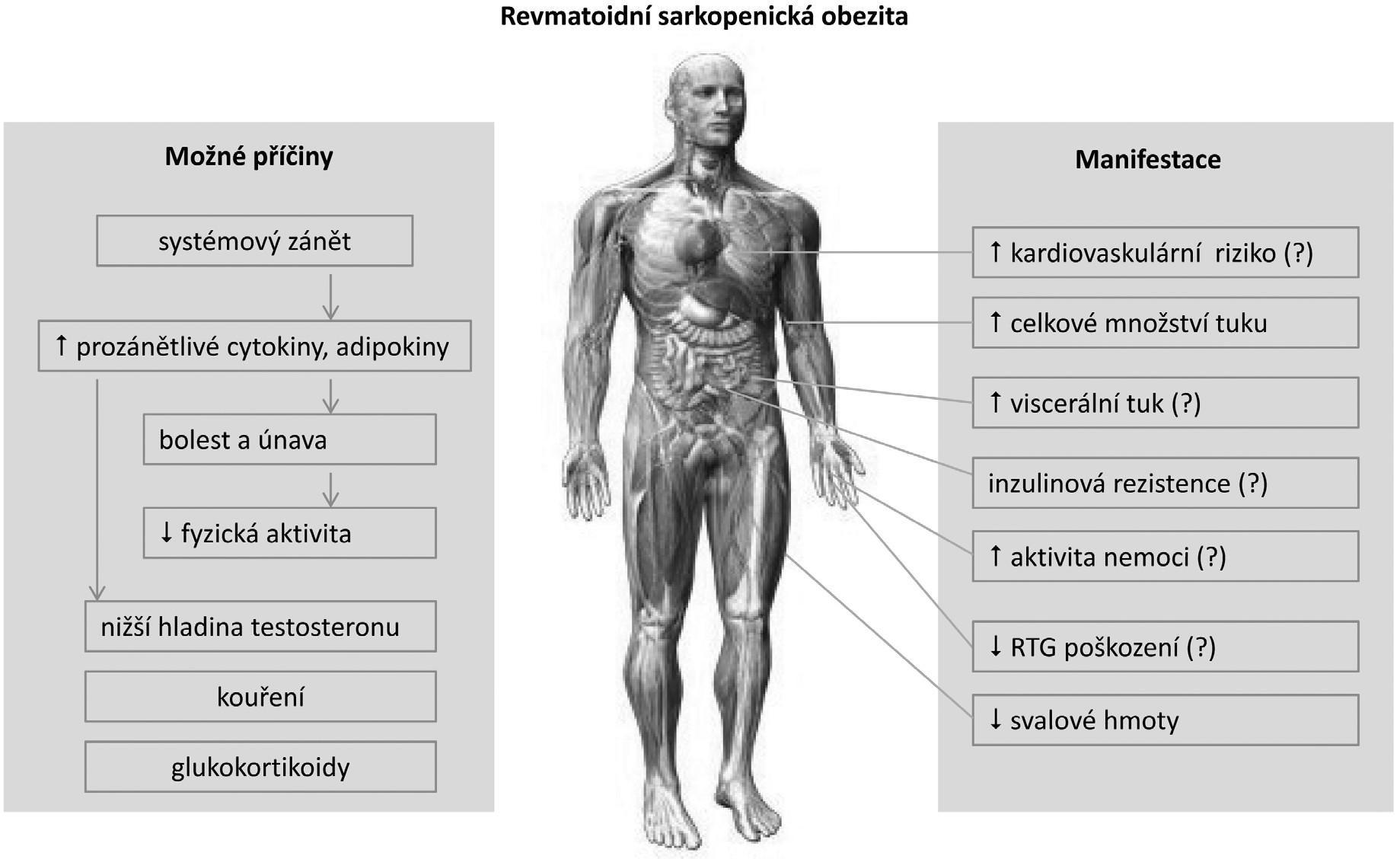 Současné poznatky o mechanismu vzniku a klinických aspektech sarkopenické obezity u revmatoidní artritidy (upraveno podle ref. 4).