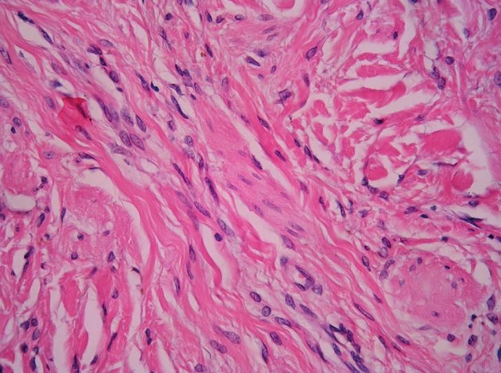 Desmoplastický névus. Převážně intradermálně nepigmentovaná melanocytární léze v silně desmoplastickém stromatu (A) je tvořena vřetenitými melanocyty s mírně pleomorfními jádry (B) (HE, A 40x, B 400x).